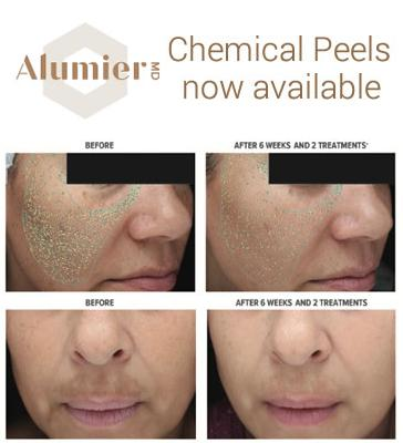 Chemical Peels now available